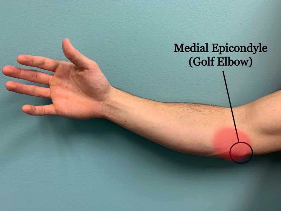 golf elbow